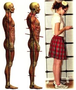postura testa sms
