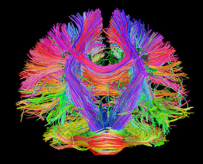 reti neurali connettoma